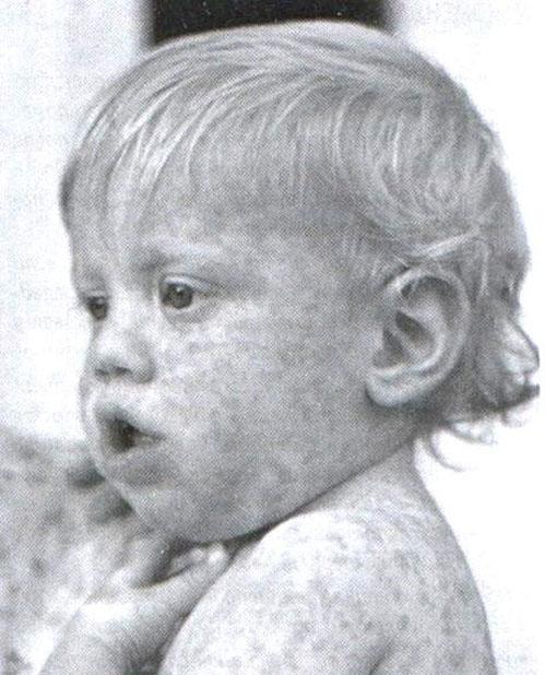 аллергическая сыпь на теле у ребенка.