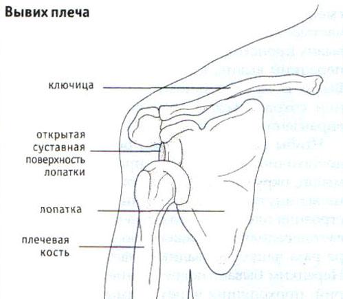Падение на вытянутую руку - обычный случай.  Из-за строения плеча головка плечевой кости прорывает.